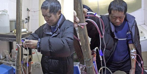 Un chinez supravieţuieşte efectuându-şi dializa în WC – folosind un aparat artizanal (VIDEO)